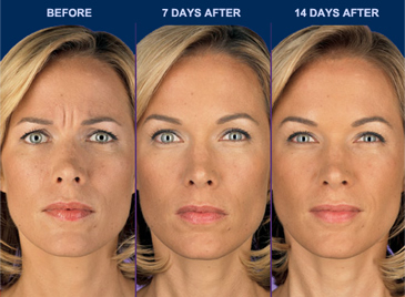 before and after pics of female patient 14 days after botox injection
