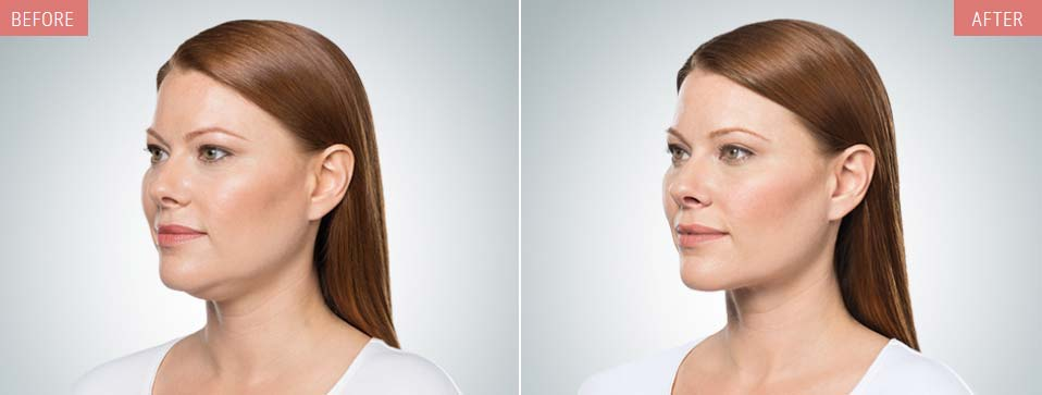 KYBELLA® before and after pics showing double chin reduction in a female