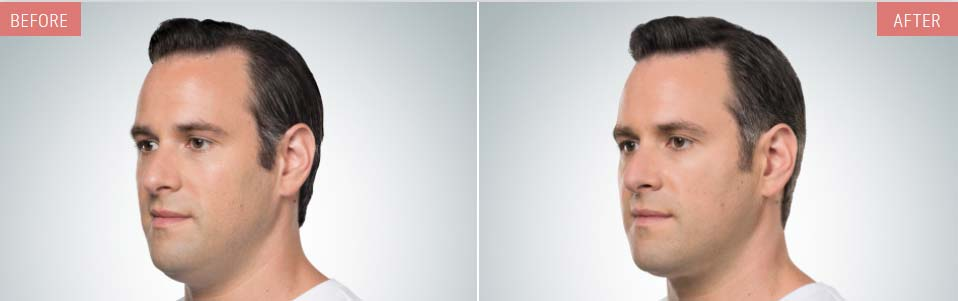 KYBELLA® before and after pics showing double chin reduction in a male