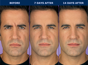 before and after pics of male patient 14 days after botox injection